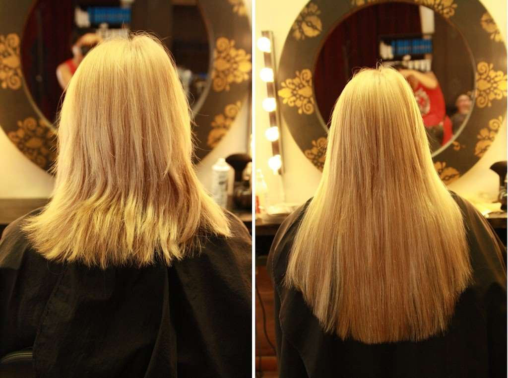 before after extensions